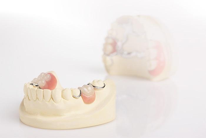 Phục hình răng & những phương pháp tái tạo thẩm mỹ răng hiệu quả 3