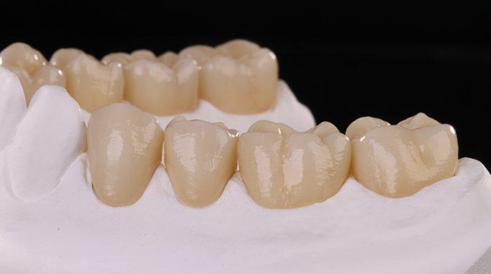 Trồng răng cấm bằng phương pháp nào hiệu quả nhất? 4
