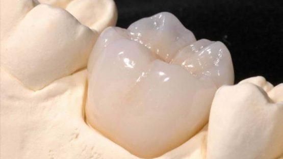 Phương pháp trồng răng số 6 đạt hiệu quả và an toàn nhất