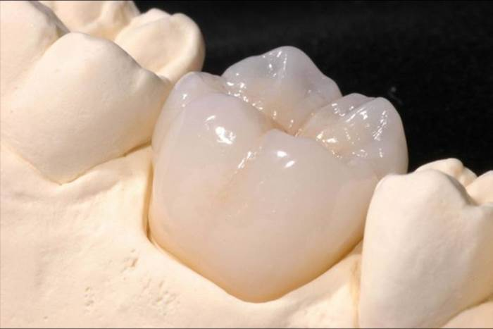 Phương pháp trồng răng số 6 đạt hiệu quả và an toàn nhất 2