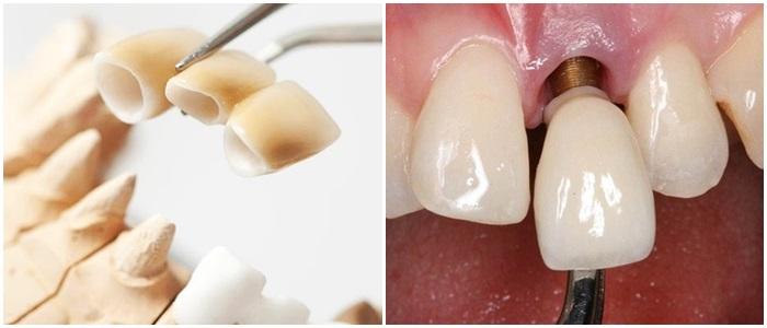 Trồng răng giả có đau không, có nguy hiểm gì không? 3