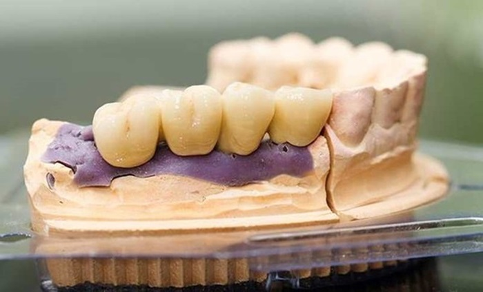 Trồng răng sứ Titan có tốt không | Chia sẻ từ chuyên gia 2
