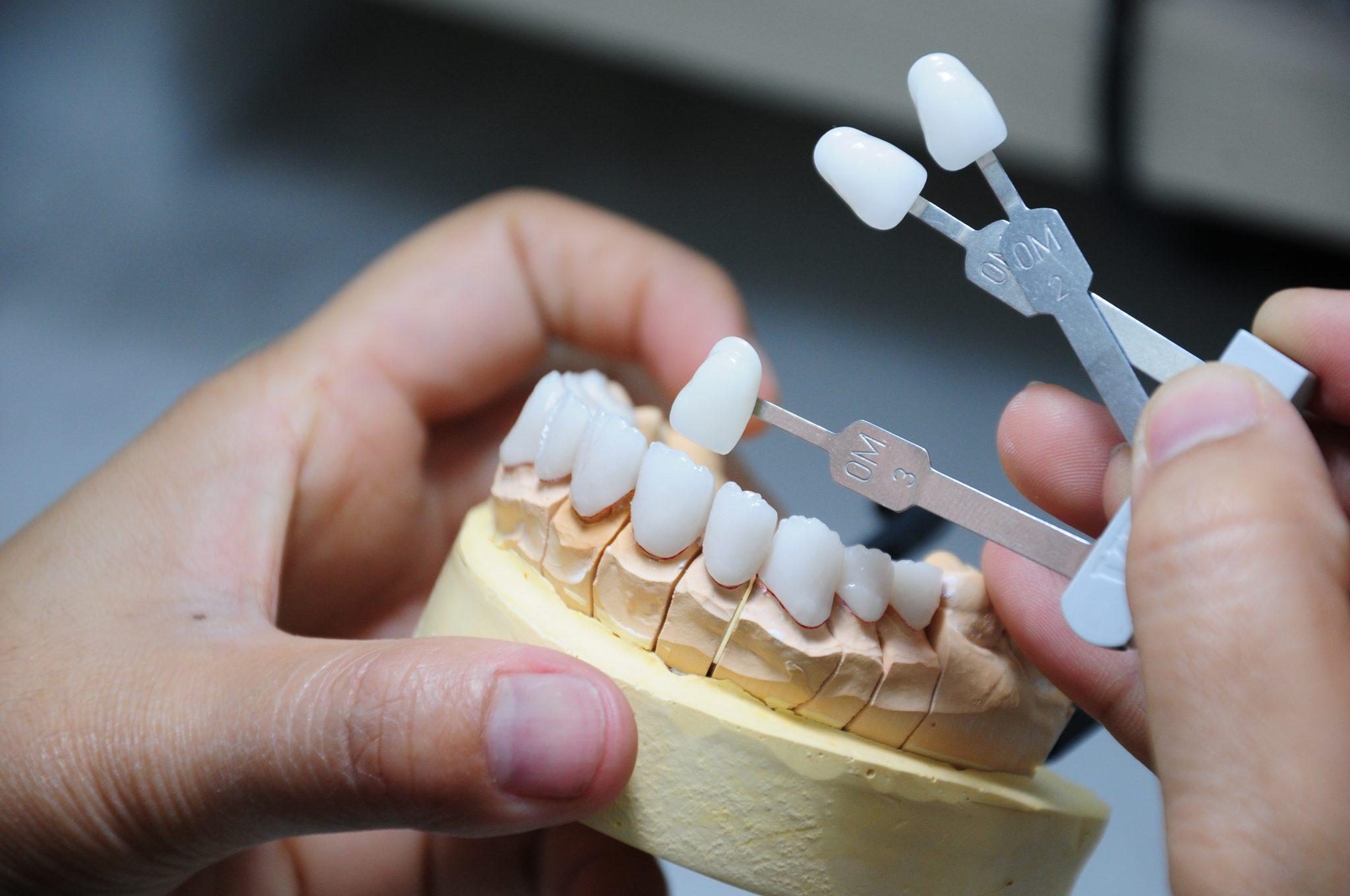 Màu sắc và chất lượng răng sứ tại nhà máy răng sứ của Nha khoa Kim đạt được độ bền đẹp, tự nhiên như răng thật