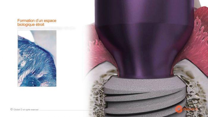 Implant Tekka là gì? Cấy ghép răng implant Tekka có tốt không? 2