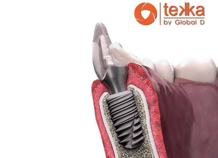 Implant Tekka là gì? Cấy ghép răng implant Tekka có tốt không? 1