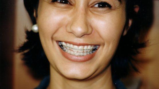 Lớn tuổi niềng răng được không? Có đều đẹp hiệu quả không?