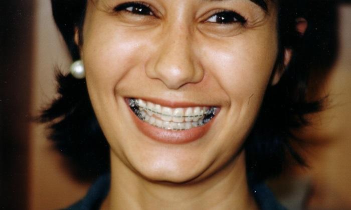 Lớn tuổi niềng răng được không? Có đều đẹp hiệu quả không? 1