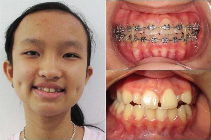 Niềng răng thưa mất bao lâu thì hoàn thành, răng đều đẹp?