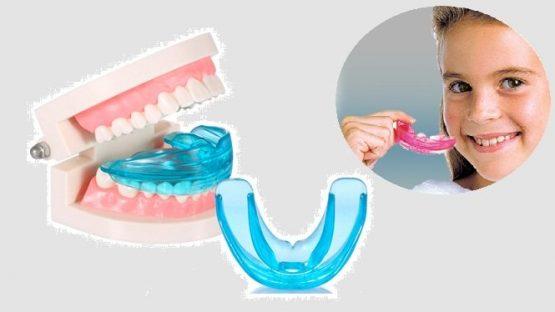 Niềng răng silicon – Chỉnh nha an toàn, thẩm mỹ cao