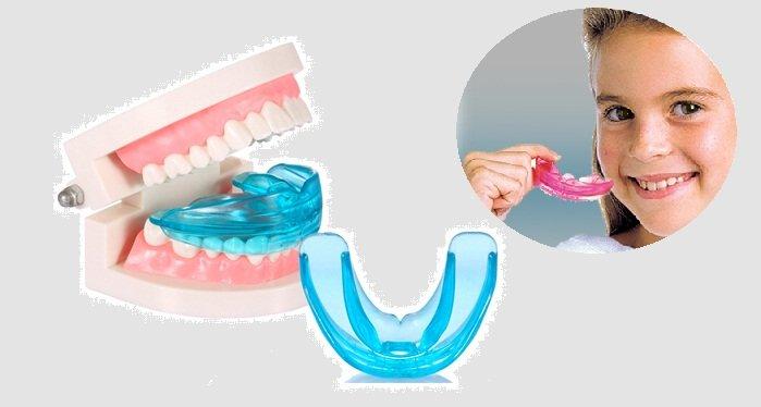 Niềng răng silicon - Chỉnh nha an toàn, thẩm mỹ cao