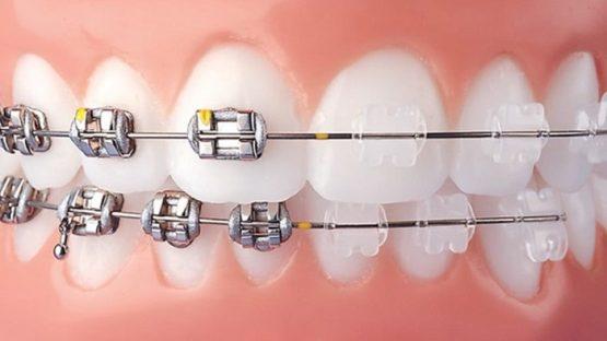 CHÍNH XÁC: Niềng răng mắc cài sứ giá bao nhiêu tiền ?