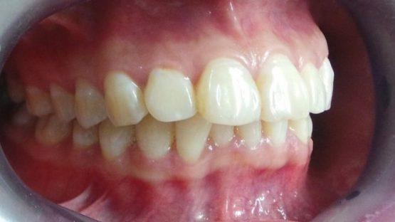 Chữa răng hô bằng cách nào hiệu quả nhất?