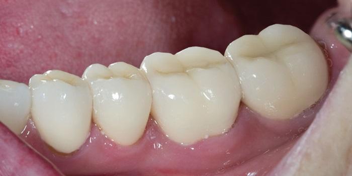 Răng sứ Zolid là gì, có tốt và bền đẹp lâu dài không? 2