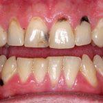 Tẩy trắng răng sâu có được không? Có an toàn và hiệu quả?