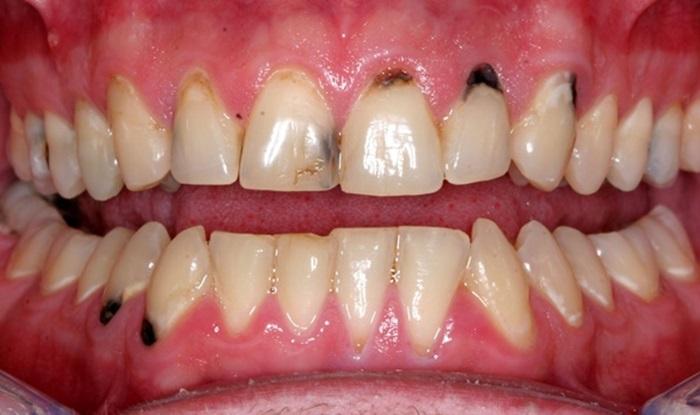 Tẩy trắng răng sâu có được không? Có an toàn và hiệu quả? 1