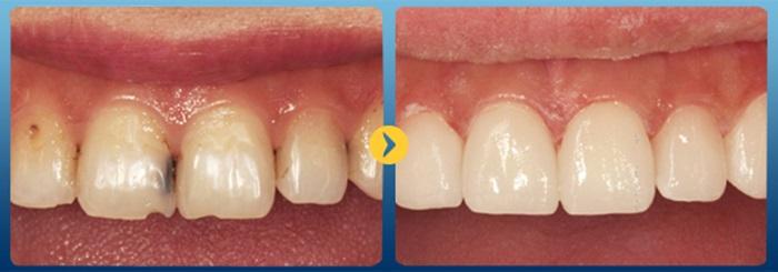 Chữa răng sâu bằng phương pháp bọc sứ có tốt không? 3