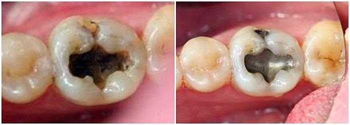 Trám răng Amalgam có tốt không? Có bền chắc lâu dài không? 2