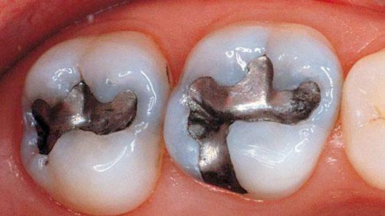 Trám răng Amalgam có tốt không? Có bền chắc lâu dài không?