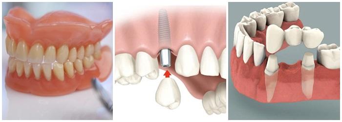 địa chỉ trồng răng giả uy tín ở TP.HCM - 2