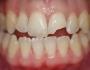 Gãy răng cửa phải làm thế nào để khắc phục hiệu quả, thẩm mỹ?