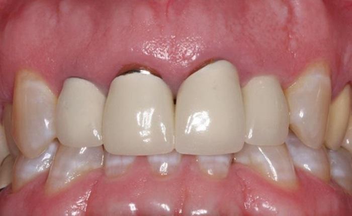 Bị hở chân răng sứ phải xử lý như thế nào nhanh và hiệu quả nhất? 1