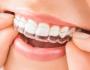 Chi phí niềng răng hô hết bao nhiêu tiền – Thông tin bạn cần biết!