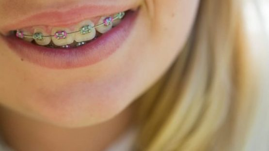 Niềng răng hô hàm trên giá bao nhiêu tiền?