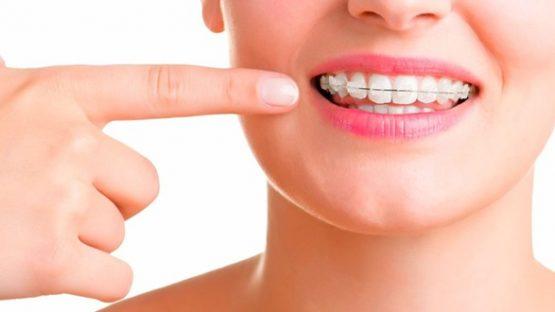 Niềng răng hô ở đâu tốt, chất lượng đảm bảo mà an toàn?