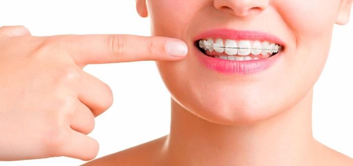 Niềng răng hô ở đâu tốt, chất lượng đảm bảo mà an toàn? 1