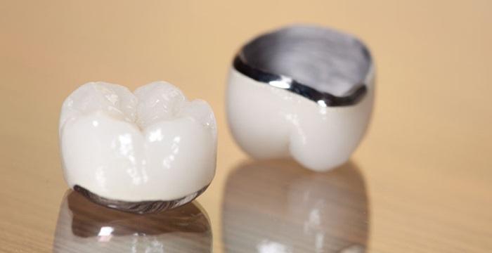 Răng sứ Chrome Cobalt là răng sứ gì, chất lượng có tốt không?
