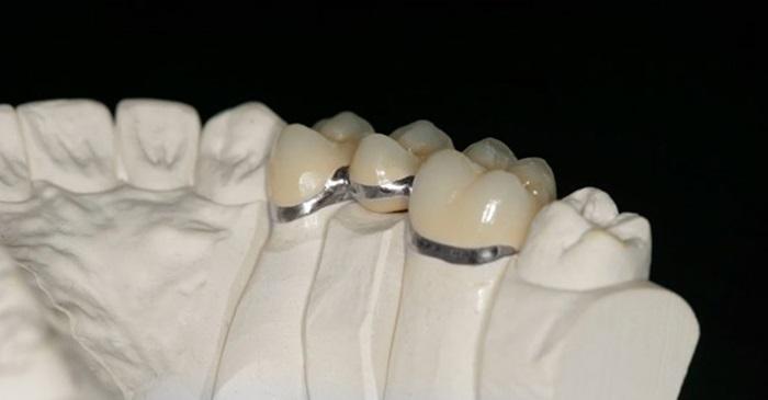 Bọc răng sứ Inox – Ưu và nhược điểm mà bạn nên biết khi lựa chọn 2