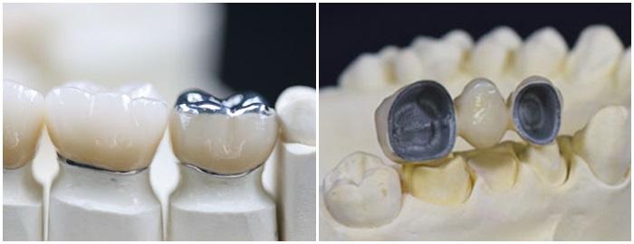 Làm răng giả an toàn bằng những kỹ thuật tiên tiến nhất 3