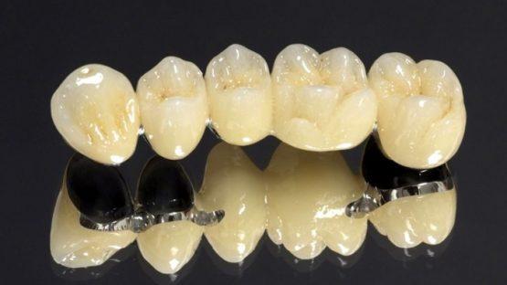 Răng sứ Coban-Crom – Giải pháp phục hình hiệu quả, đẹp, tiết kiệm
