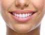 Tẩy trắng răng ở Hà Nội – Địa chỉ nào uy tín, thực hiện an toàn?