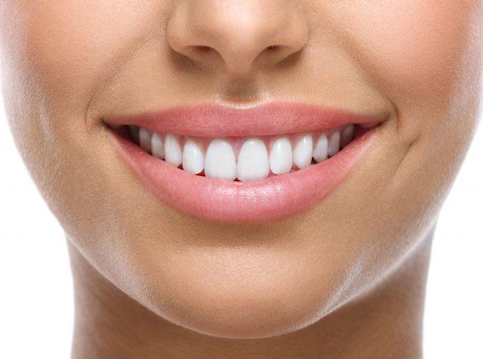 Tẩy trắng răng ở Hà Nội – Địa chỉ nào uy tín, thực hiện an toàn? 1