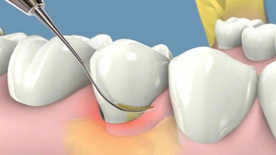 Cao răng, vôi răng là gì, 6 cách để ngừa cao răng