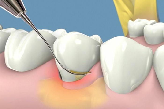 Cạo vôi răng và tẩy trắng răng cùng lúc có được không?