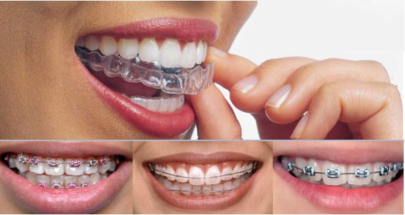 Hình ảnh niềng răng không mắc cài (bên trên) và các phương pháp niềng răng khác