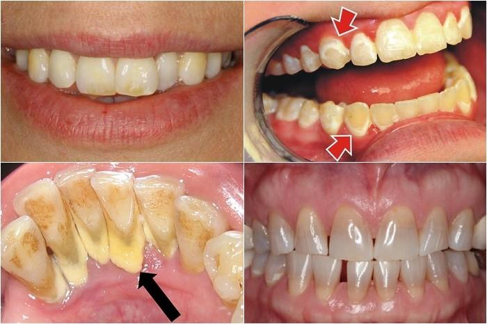 cạo vôi răng và tẩy trắng răng - 1