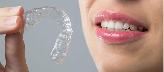 Niềng răng invisalign có hiệu quả không? Có tốt không?