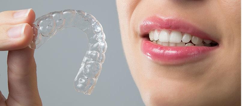 Niềng răng không mắc cài đạt hiệu quả thẩm mỹ tối ưu