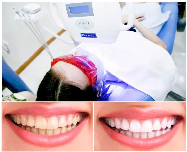 tẩy trắng răng tại nhà - 3