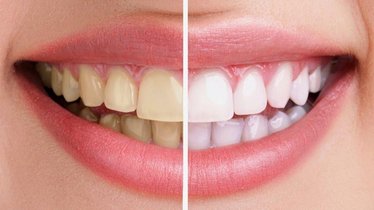 tẩy trắng răng tại nhà - 1