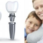 Trồng răng implant ở người già - Những điều cần biết rõ