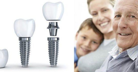 Những thông tin cần biết về trồng răng implant