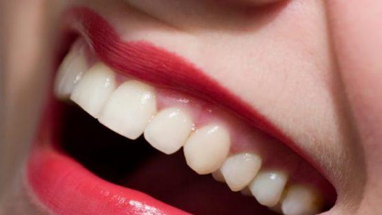 Bọc răng sứ titan giá bao nhiêu? Tiêu chí quyết định