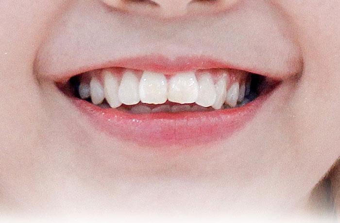 Cách chữa răng hô nhanh nhất, răng đẹp, ăn nhai tốt