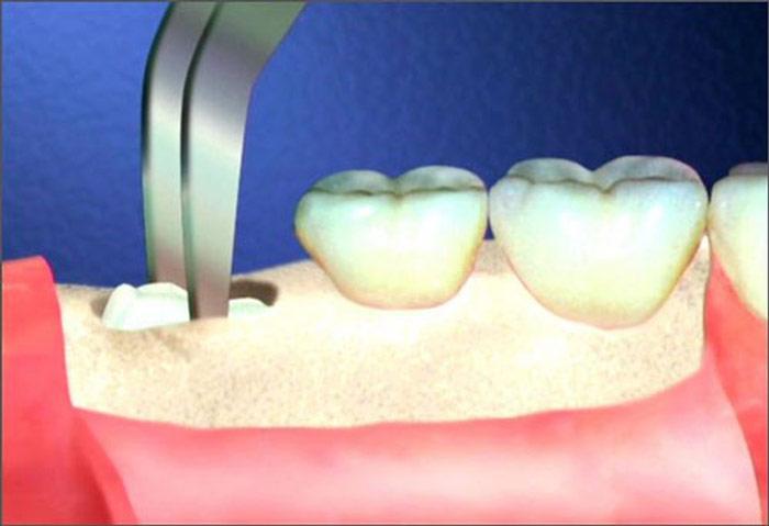 Nhổ răng đau mấy ngày, làm sao để hết đau răng sau nhổ?