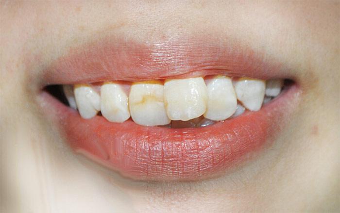 Niềng 2 răng cửa cho răng đều đẹp, ăn nhai khỏe