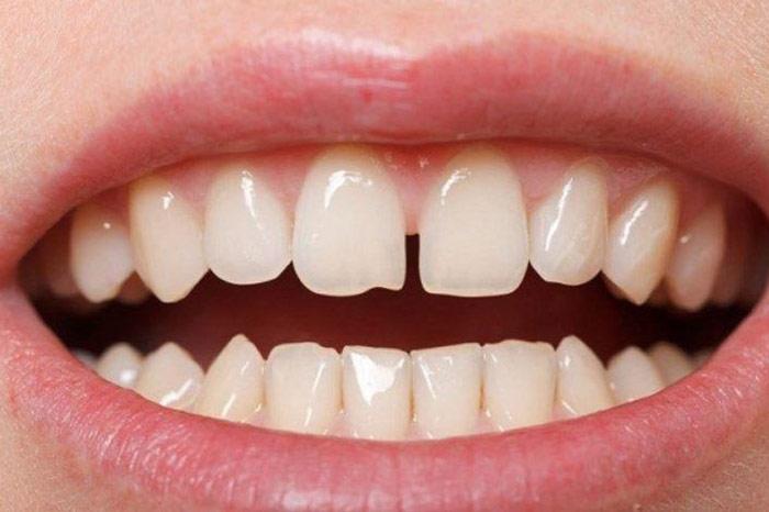 Tại sao răng bị thưa và cách làm răng khít lại hiệu quả